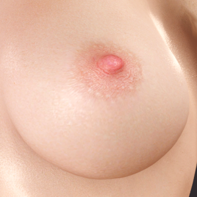 Puffiness Overdose: Nipple Skin Graft