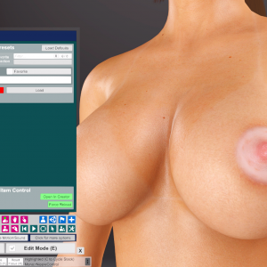 CuteSvetlana.Nipple Skin Graft (1).png