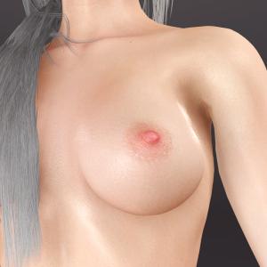 CuteSvetlana.Nipple Skin Graft (11).png