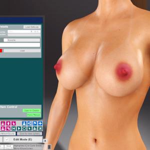 CuteSvetlana.Nipple Skin Graft (24).png